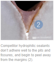 Competitor hydrophilic sealants don't adhere well to the pits and fissures