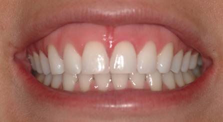 opalesence-brushing